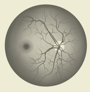 ניתוחי רשתית