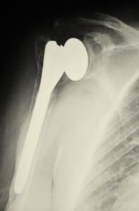ניתוח החלפת מפרק כתף