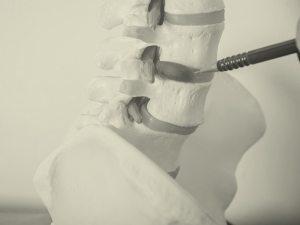 ניתוח עצם הזנב