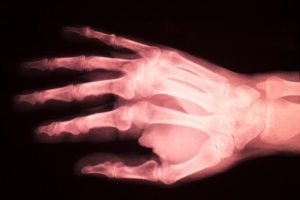 ניתוח אצבע הדק