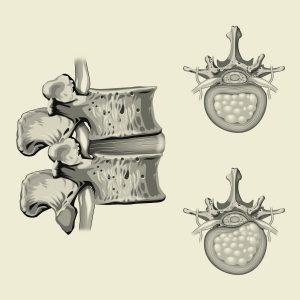 ניתוח פריצת דיסק צווארי