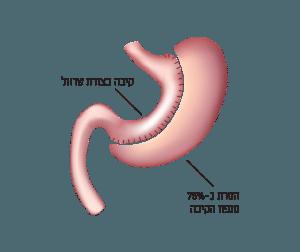 ניתוח קיצור קיבה (ניתוח שרוול)