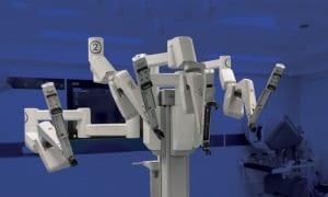 ניתוח רובוט דה וינצ'י